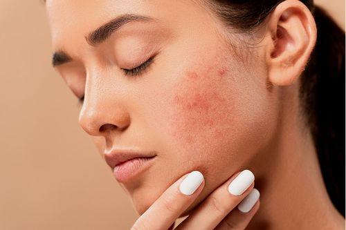 Mикровъзпалението може да бъде причина за акне